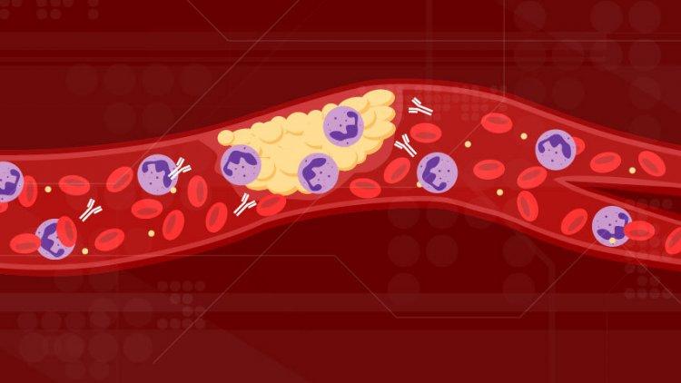 COVID-19  Blood Clots: Η επικίνδυνη φλεβική θρομβοεμβολή μπορεί να εμφανιστεί και σε ασθενείς με μέτρια Covid-19